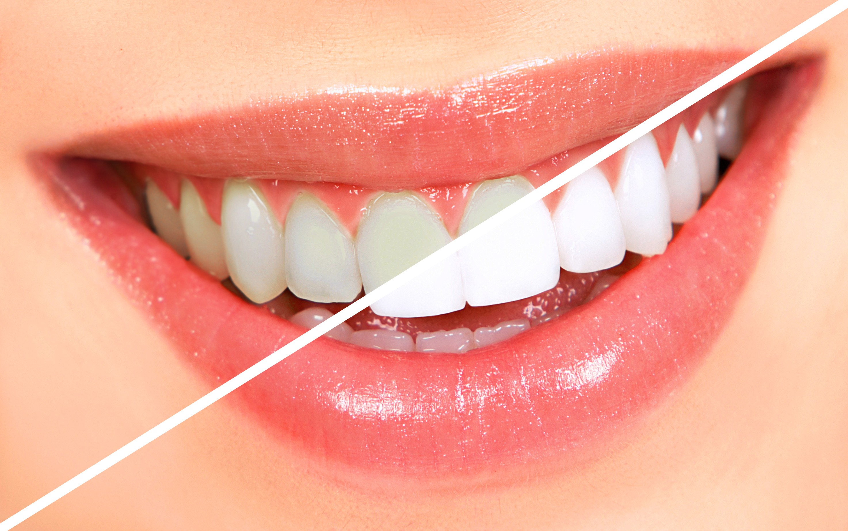 Teeth-whitening Methods Work For You?